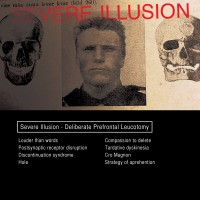 "Severe Illusion – ""Deliberate Prefrontal Leucotomy"""